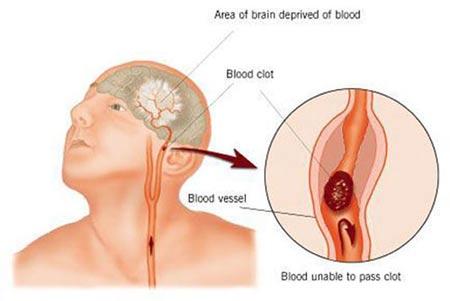 โรคหลอดเลือดสมองตีบตัน