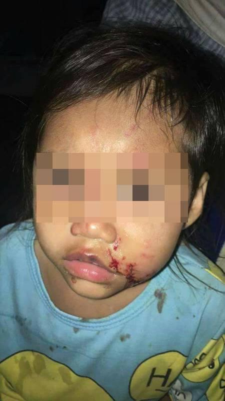 พ่อสุดช้ำ ลูกถูกหมาขย้ำหวิดเสียโฉม แต่เจ้าของตีมึน ซ้ำแจ้งความว่าเด็กกัดหมา