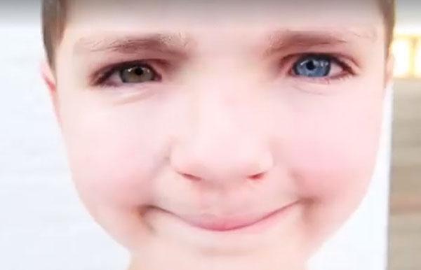 ผลการค้นหารูปภาพสำหรับ เด็กมีดวงตาคนละสี