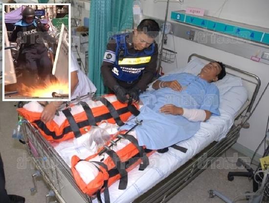 ด.ต.ธีรเดช เล็กภู่ ตำรวจเตะระเบิด ย้ายไป รพ.ตำรวจ-ภรรยา เผย เป็นคนรักเพื่อน
