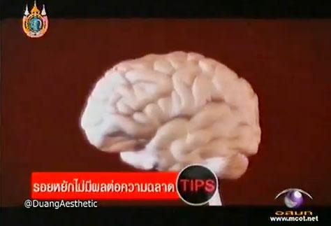 วู้ดดี้เกิดมาคุย : หนูดี วนิษา เรซ ตอบเรื่องสมองในมุมมองสนุก ๆ