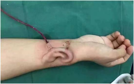 สุดล้ำ ! แพทย์จีนปลูกหูเทียมชั่วคราวที่แขนคนไข้