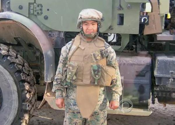 ทหารมะกันเคราะห์ร้าย ถูกระเบิดหน้าเละ-แขนขาด แต่โชคดีพบรักแท้