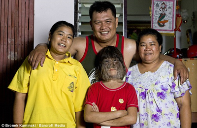 เด็กหญิงที่มีขนยาวที่สุดในโลก